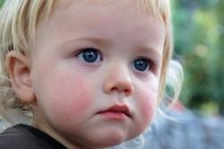 Крапивница у ребенка