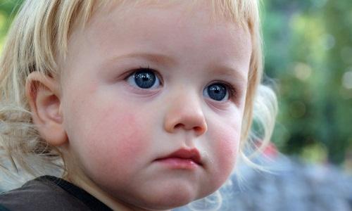 Проблема аллергического дерматита у детей