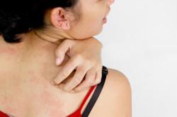 Проблема крапивницы при аллергии на кислоту