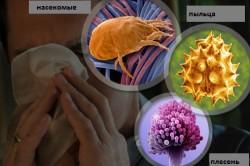 Возбудители аллергического ринита