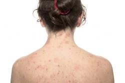 Крапивница как проявление аллергии на пеницилин