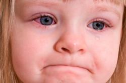 Слезоточивость глаз при аллергическом рините