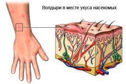 Волдыри от укусов насекомых