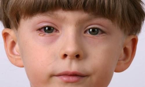 Аллергия век и глаз