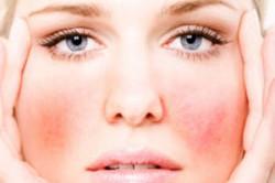 Сыпь на лице при аллергии
