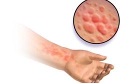 Сыпь при аллергии на синтетику