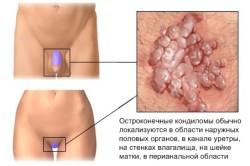 Схема  генитальной аллергии