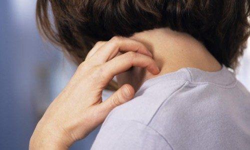 Проблема аллергии на шее