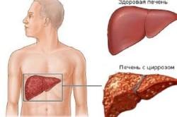 Цирроз - противопоказание к употреблению имбиря