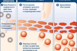Схема образования аллергического дерматита