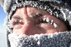 Холод - причина аллергического конъюнктивита