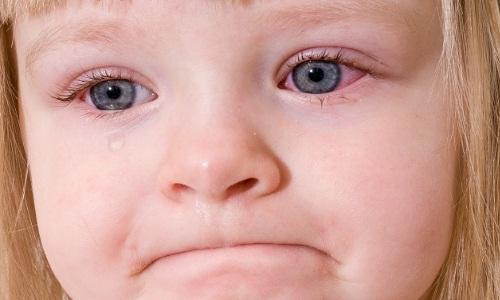 Проблема аллергического конъюнктивита у детей