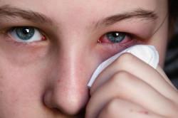 Коньюктивит - симптом аллергии на шиншиллу