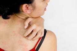 Высыпания на коже при аллергии