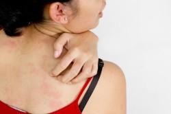 Крапивница - симптом аллергии
