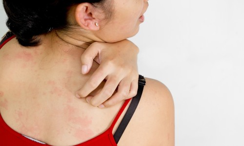 Аллергия на синтетические вещи