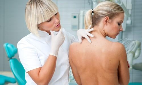 Консультация дерматолога при крапивнице