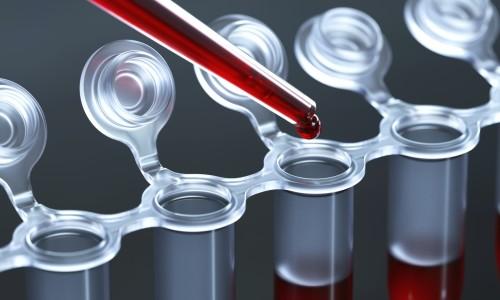 Кровь для анализа на аллергию