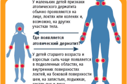 Места проявления дерматита