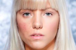 Тональный крем - причина контактного дерматита