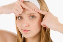 Прыщи как симптом аллергии на лице