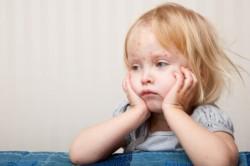 Сыпь - симптом аллергии на цитрусовые
