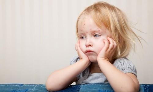 Проблема аллергии на коже ребенка