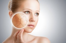 Сухость кожи - симптом аллергии