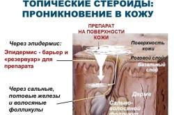 Схема воздействия топического стероида