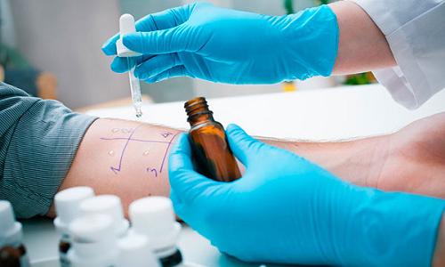 Анализ на аллергию - кожный тест