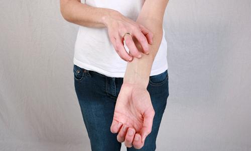 Зуд при контактном дерматите рук