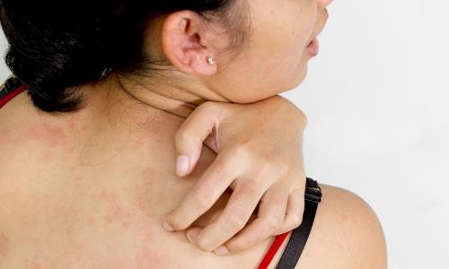 Проблема аллергического контактного дерматита