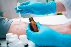 Проведение кожного теста на аллергию