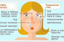 Основные симптомы поллиноза