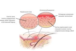Схема атопического дерматита