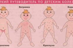 Виды инфекционной сыпи