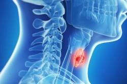 Заболевания щитовидной железы - причина аллергии на холод