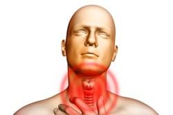 Боль в горле - симптом весенней аллергии
