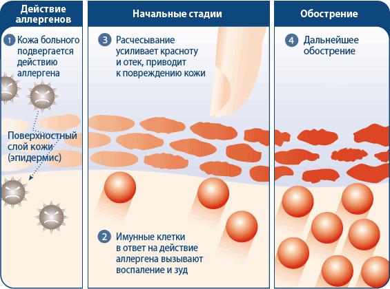 периоральный дерматит / страница 29