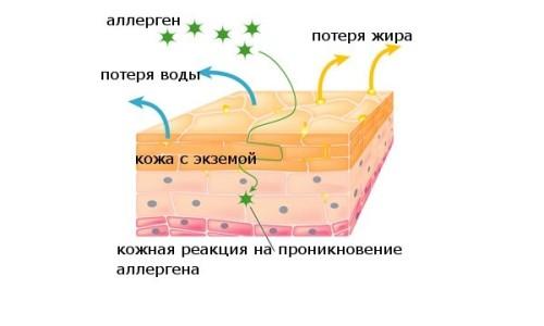 Диета при лечение сухой экземы