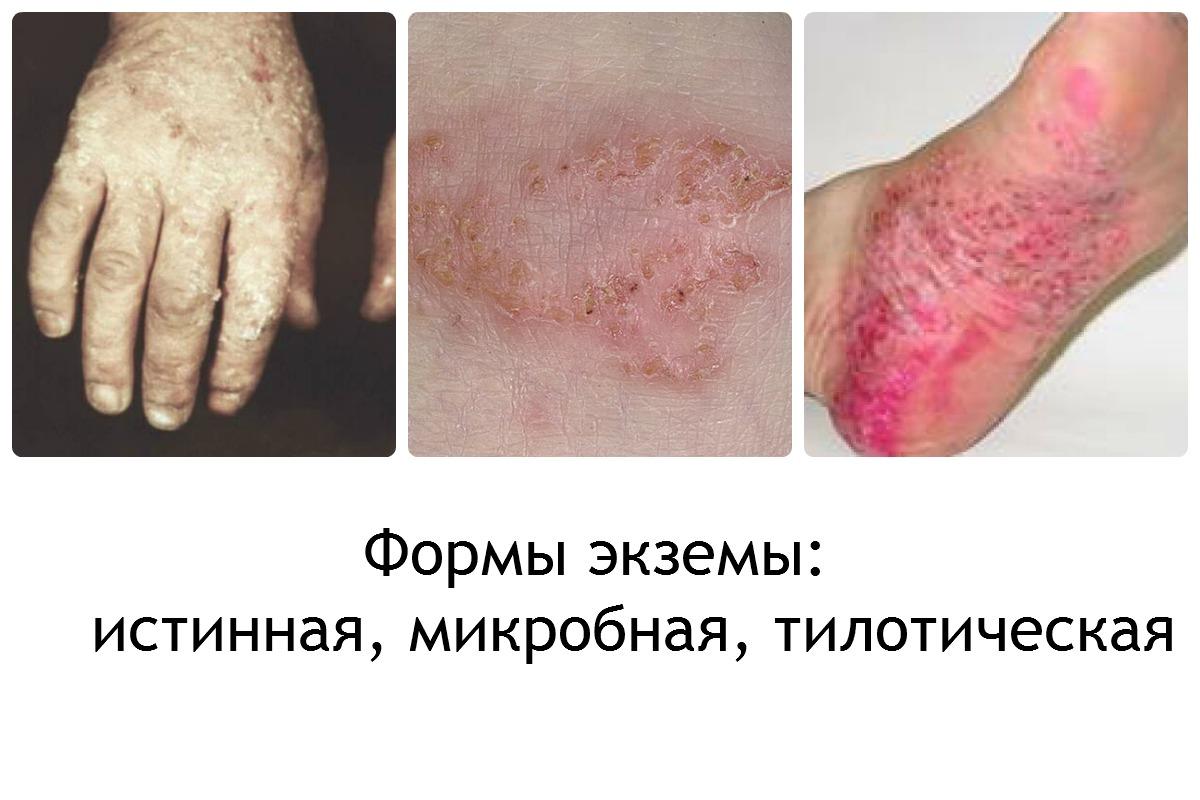 Аллергия на гель лак лечение препараты