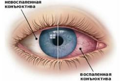 Конъюнктивит - симптом аллергии