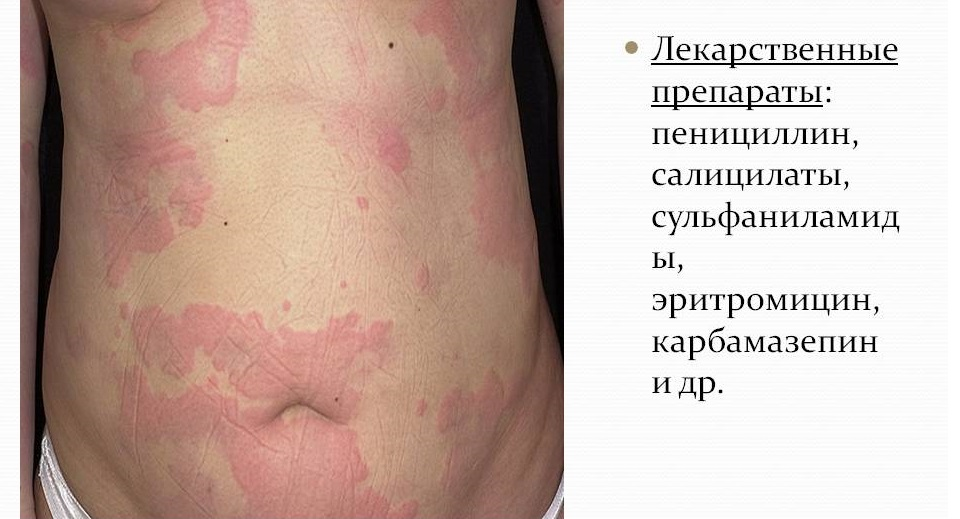 Препараты от аллергии на солнце