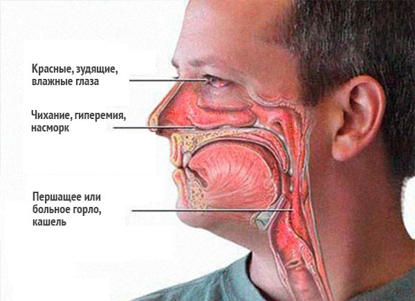 аллергия на животе фото у взрослых