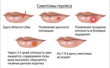 безопасное избавление от паразитов