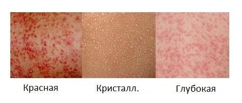 отличия потницы от аллергии фото
