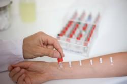 Выявление аллергии при помощи теста