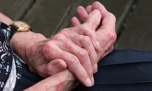 Аллергия на руках у человека