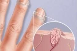 Схема пузырьков на пальцах рук